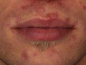 enteroviral-stomatitis-045__protectwyjqcm90zwn0il0_focusfillwzi5ncwymjisingildfd-8096147-7412035