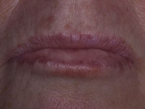enteroviral-stomatitis-047__protectwyjqcm90zwn0il0_focusfillwzi5ncwymjisingilde5xq-7685841-5295716