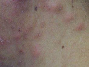 Foliculitis pustulosa eosinofílica - Hoogstra - Centros ...