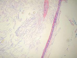eruptive-vellus-cyst-histo-1__protectwyjqcm90zwn0il0_focusfillwzi5ncwymjisingildfd-6071616-7191895