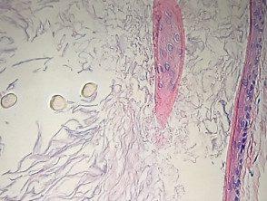 eruptive-vellus-cyst-histo-2__protectwyjqcm90zwn0il0_focusfillwzi5ncwymjisingildfd-5238974-9882920