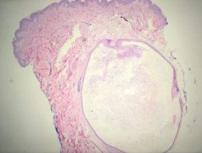 eruptive-vellus-cyst-histo-5__protectwyjqcm90zwn0il0_focusfillwzi5ncwymjisingildfd-9101957-9210954