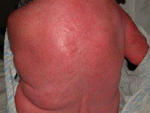 erythroderma-10__protectwyjqcm90zwn0il0_focusfillwzi5ncwymjisingildfd-8397831-1485195