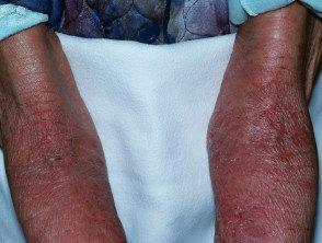 erythroderma-13__protectwyjqcm90zwn0il0_focusfillwzi5ncwymjisingildfd-9554219-4494498