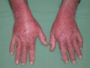 erythroderma-15__protectwyjqcm90zwn0il0_focusfillwzi5ncwymjisingildfd-6416719-4126896