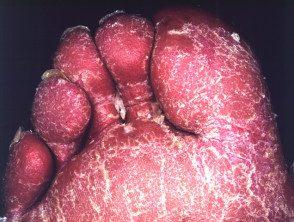 erythroderma-16__protectwyjqcm90zwn0il0_focusfillwzi5ncwymjisingildfd-1648592-6989848
