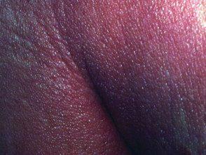 erythroderma2__protectwyjqcm90zwn0il0_focusfillwzi5ncwymjisinkildgwxq-5200182-4892013