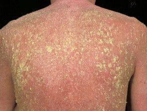 erythroderma3__protectwyjqcm90zwn0il0_focusfillwzi5ncwymjisingildfd-3072527-1485423