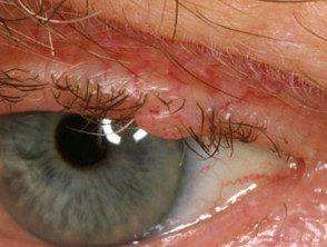 eyelid-01__protectwyjqcm90zwn0il0_focusfillwzi5ncwymjisinkildm2xq-7613000-8601971