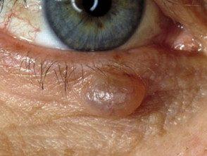 eyelid-03__protectwyjqcm90zwn0il0_focusfillwzi5ncwymjisinkildm2xq-5433798-6649659