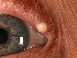 eyelid-05__protectwyjqcm90zwn0il0_focusfillwzi5ncwymjisingildfd-9217723-6724367