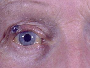 eyelid-08__protectwyjqcm90zwn0il0_focusfillwzi5ncwymjisingildfd-3409645-4484278