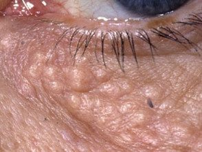 eyelid-12__protectwyjqcm90zwn0il0_focusfillwzi5ncwymjisinkildm2xq-9582888-8922102