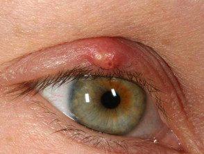 eyelid-16__protectwyjqcm90zwn0il0_focusfillwzi5ncwymjisingildfd-1222564-4269104