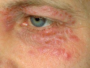 eyelid-19__protectwyjqcm90zwn0il0_focusfillwzi5ncwymjisingildfd-9637908-3911621