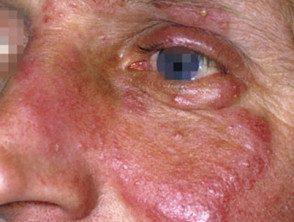 eyelid-21__protectwyjqcm90zwn0il0_focusfillwzi5ncwymjisinkildm2xq-6928367-1349813