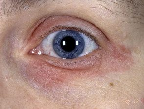 eyelid-25__protectwyjqcm90zwn0il0_focusfillwzi5ncwymjisinkildnd-7379968-6501526