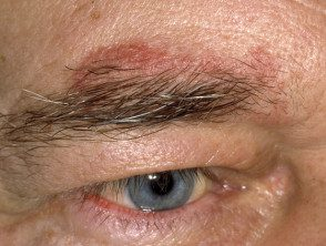 eyelid-26__protectwyjqcm90zwn0il0_focusfillwzi5ncwymjisingildiwxq-6663765-8420934