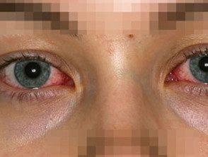 eyelid-32__protectwyjqcm90zwn0il0_focusfillwzi5ncwymjisinkildm2xq-2070884-9049827