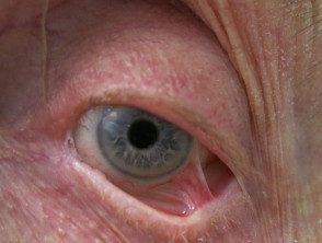 eyelid-33__protectwyjqcm90zwn0il0_focusfillwzi5ncwymjisingildfd-3919192-8964400