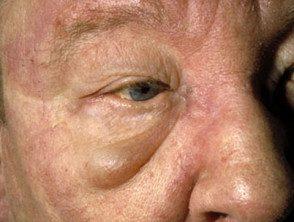 eyelid-36__protectwyjqcm90zwn0il0_focusfillwzi5ncwymjisinkildm2xq-2414362-2751962