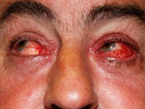eyelid-41__protectwyjqcm90zwn0il0_focusfillwzi5ncwymjisingildfd-3763204-3634676