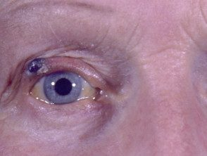 eyelid-melanoma-2__protectwyjqcm90zwn0il0_focusfillwzi5ncwymjisingildfd-5671483-1543259