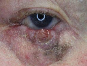 eyelid-melanoma-3__protectwyjqcm90zwn0il0_focusfillwzi5ncwymjisingildfd-6882099-9414467