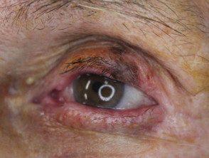 eyelid-melanoma-4__protectwyjqcm90zwn0il0_focusfillwzi5ncwymjisingildfd-8723078-7578006