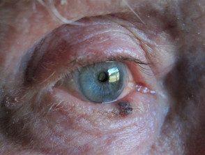 eyelid-melanoma-5__protectwyjqcm90zwn0il0_focusfillwzi5ncwymjisingildzd-9835094-1808335