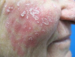 facial-psoriasis-001__protectwyjqcm90zwn0il0_focusfillwzi5ncwymjisingilde5xq-3978862-4253388