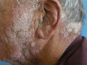 facial-psoriasis-002__protectwyjqcm90zwn0il0_focusfillwzi5ncwymjisingildfd-5906730-9141776