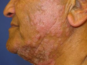 facial-psoriasis-003__protectwyjqcm90zwn0il0_focusfillwzi5ncwymjisingilde5xq-3346064-7964020