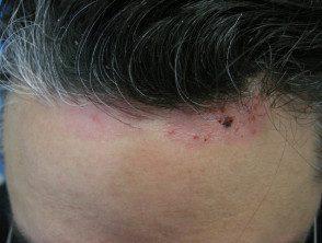 facial-psoriasis04__protectwyjqcm90zwn0il0_focusfillwzi5ncwymjisingildfd-6703269-5681349