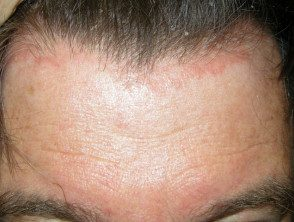 facial-psoriasis05__protectwyjqcm90zwn0il0_focusfillwzi5ncwymjisingildfd-3469547-1353956