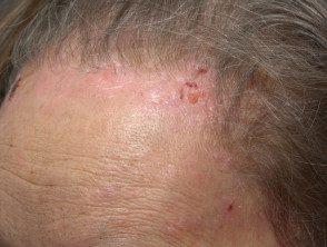 facial-psoriasis06__protectwyjqcm90zwn0il0_focusfillwzi5ncwymjisingildfd-9228991-7489552
