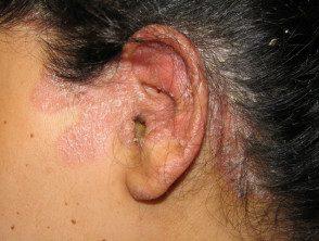 facial-psoriasis08__protectwyjqcm90zwn0il0_focusfillwzi5ncwymjisingildfd-6806544-6860118