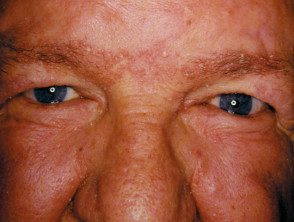 facial-psoriasis09__protectwyjqcm90zwn0il0_focusfillwzi5ncwymjisingildfd-2183078-3938985