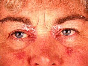 facial-psoriasis10__protectwyjqcm90zwn0il0_focusfillwzi5ncwymjisingildfd-1517794-3045100