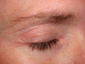 facial-psoriasis11__protectwyjqcm90zwn0il0_focusfillwzi5ncwymjisingildfd-6329771-6199821