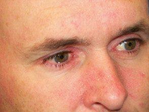facial-psoriasis12__protectwyjqcm90zwn0il0_focusfillwzi5ncwymjisingildfd-6186851-1392835