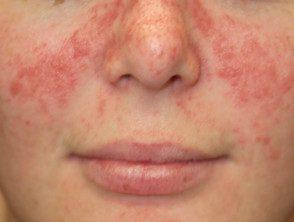 facial-psoriasis13__protectwyjqcm90zwn0il0_focusfillwzi5ncwymjisingildbd-5458328-2085586