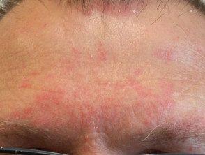 facial-psoriasis15__protectwyjqcm90zwn0il0_focusfillwzi5ncwymjisingildfd-5473715-2103023