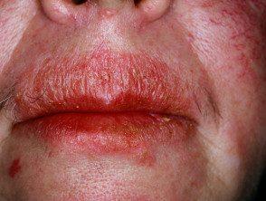 facial-psoriasis17__protectwyjqcm90zwn0il0_focusfillwzi5ncwymjisingildizxq-8972466-5287330