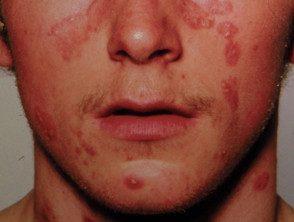 facial-psoriasis23__protectwyjqcm90zwn0il0_focusfillwzi5ncwymjisingildfd-9609643-4474493