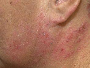 facial-psoriasis26__protectwyjqcm90zwn0il0_focusfillwzi5ncwymjisingildfd-5054680-8311510