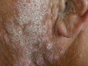 facial-psoriasis28__protectwyjqcm90zwn0il0_focusfillwzi5ncwymjisingildfd-2635849-1809168