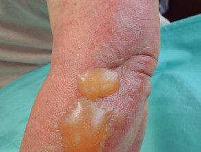 fig-dermatitis-2__protectwyjqcm90zwn0il0_focusfillwzi5ncwymjisinkildg1xq-1116341-7560138