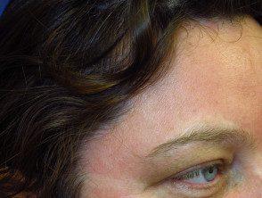 figure-57-face__protectwyjqcm90zwn0il0_focusfillwzi5ncwymjisingilde5xq-5158322-9482330