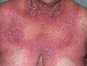 gen-pustular-psoriasis-03__protectwyjqcm90zwn0il0_focusfillwzi5ncwymjisingildfd-6929934-2862139